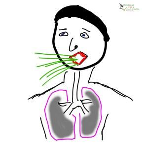 Pneumonia Gary Lum
