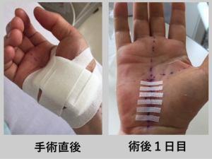手根管症候群 手術 術後