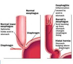 Barrett's esophagus | RN | Pinterest