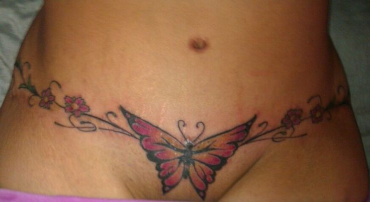 Pictures Of Tattoos On Tummy Tuck Scars | ojiqys