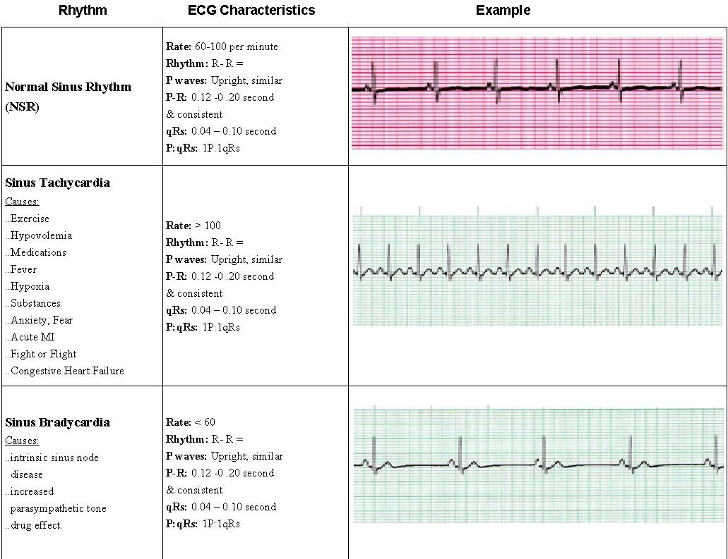 Images About Acls