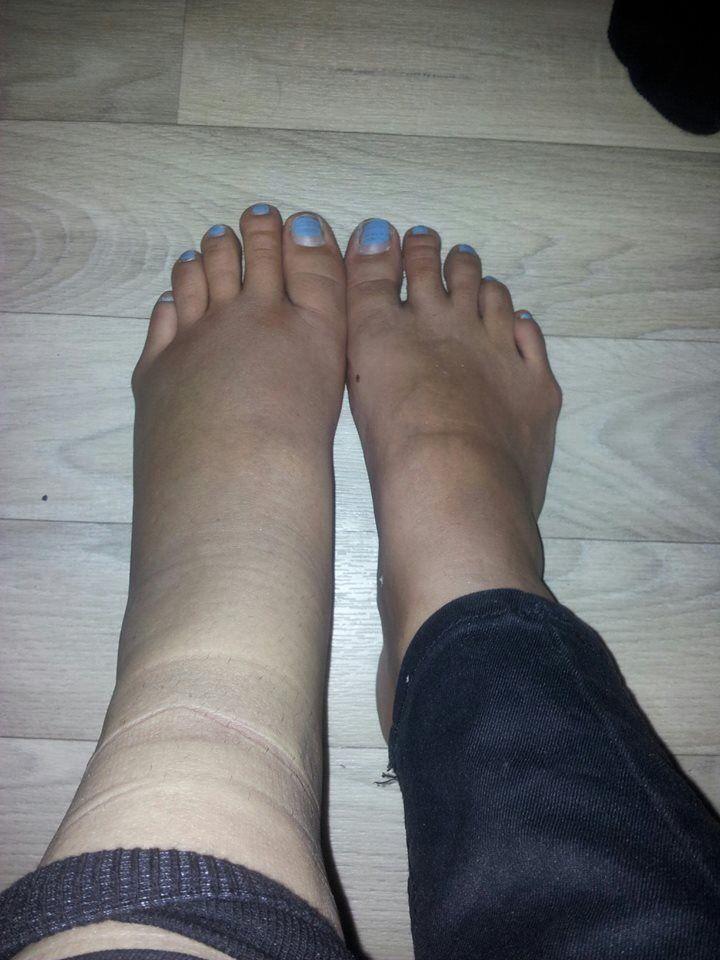Broken ankle sprainbroken anklebroken footbroken leg