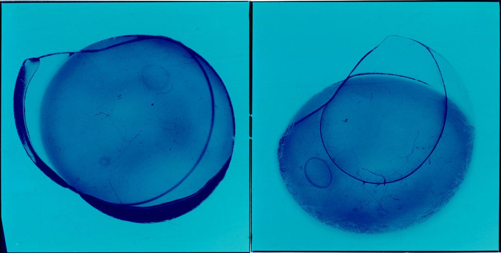 CL-100911, 2000, Aleydis Rispa