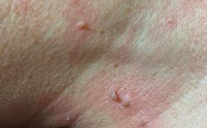 Fibrom Skintag