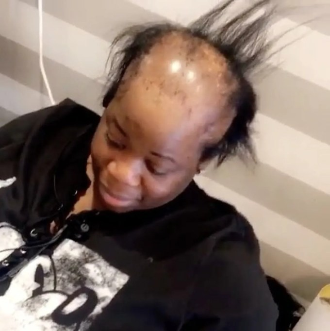 this woman with alopecia just got the most amazing hair