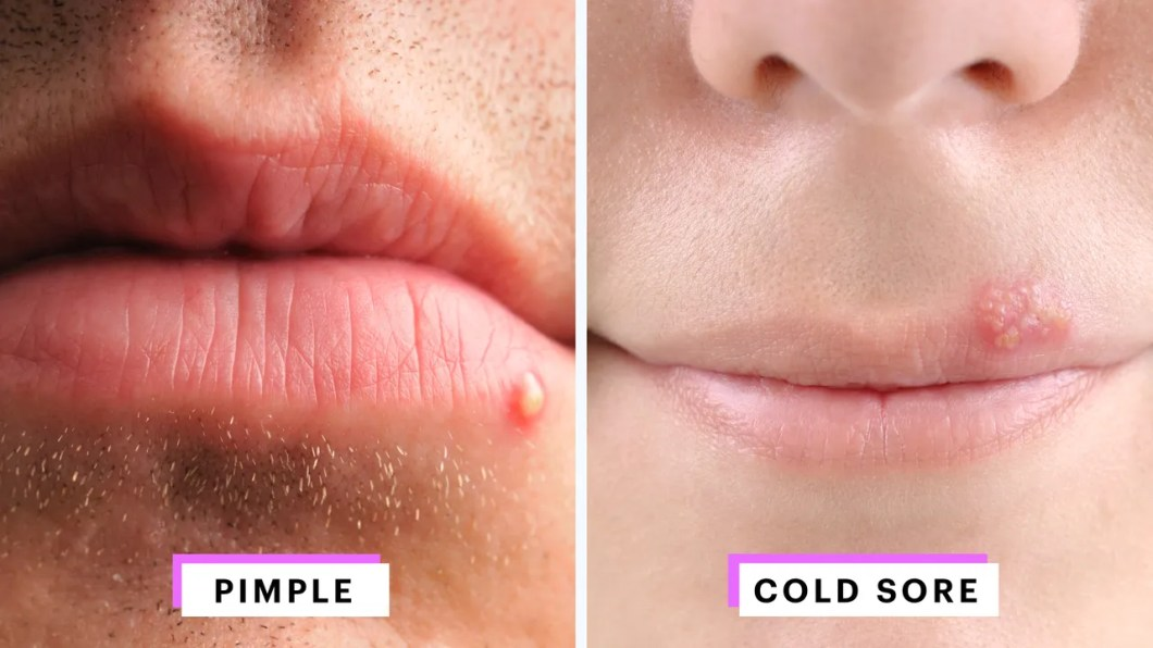 herpes on the lips pictures | Amtmakeup co