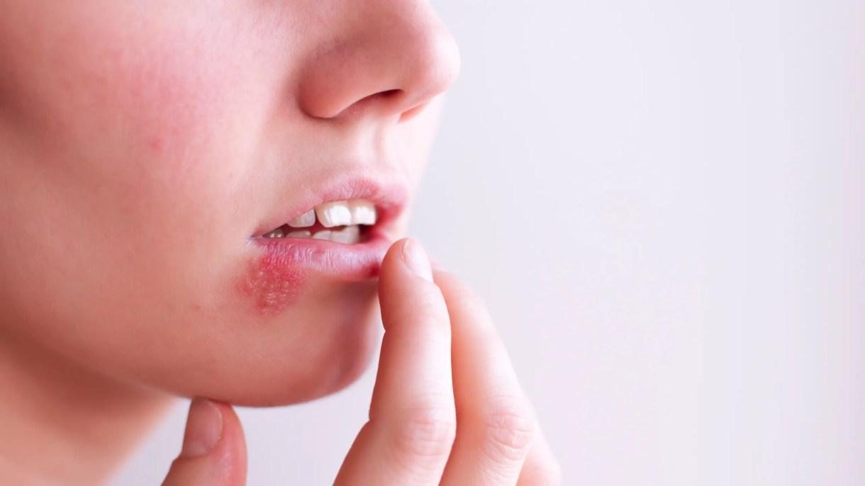 el herpes genital:10 tratamientos naturales