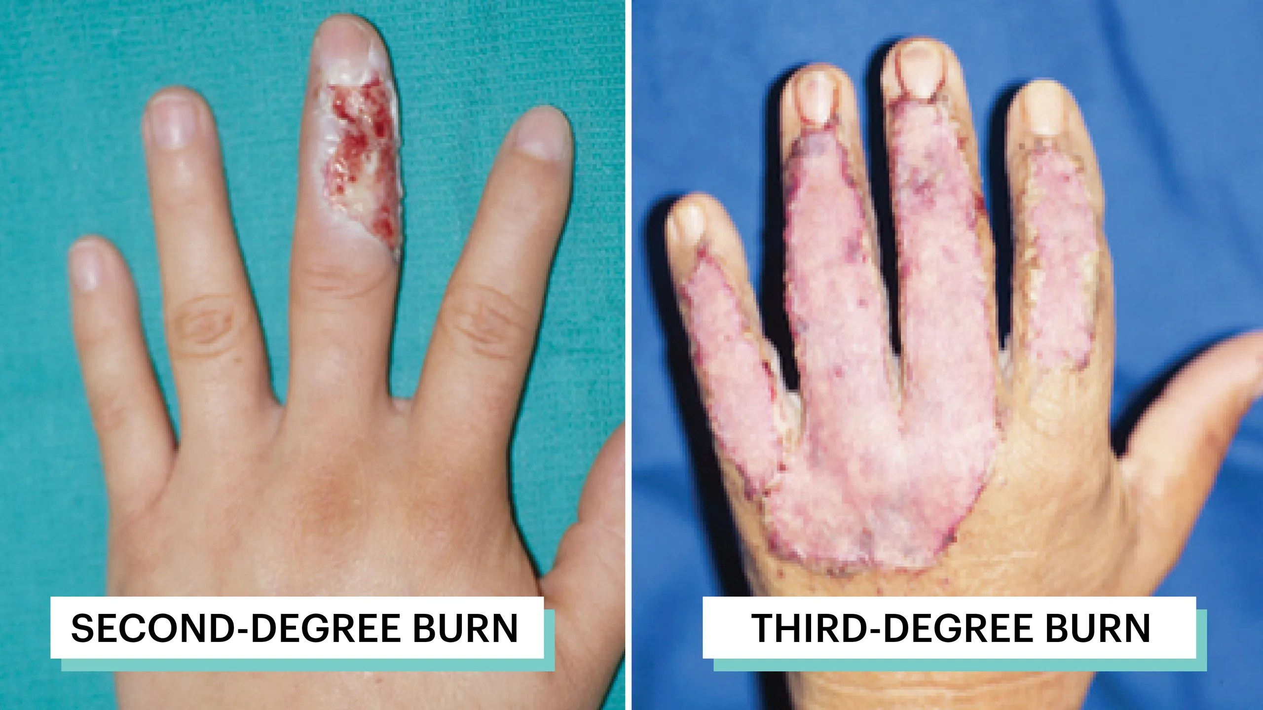 What Do 1st 2nd And 3rd Degree Burns Look Like A Visual