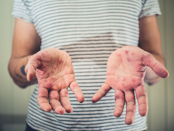 手腳指起小水泡原來係患汗皰疹 捱夜壓力大都可能係成因 | 生活事 | 巴士的報
