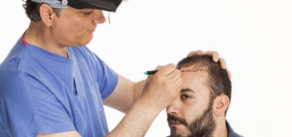 säker hårtransplantation vid håravfall