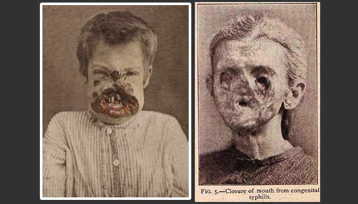 Image result for Congenital syphilis