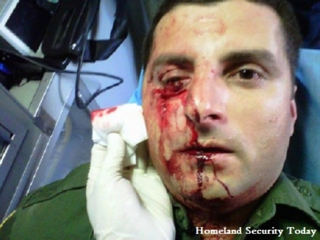 Border Patrol Agent eye injury - file photo