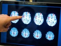 The brain scans detected lingering alterations in the white matter
