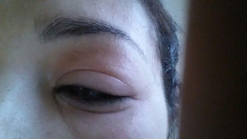 Allergic Reaction To Eye Makeup Remover Makeupview Co