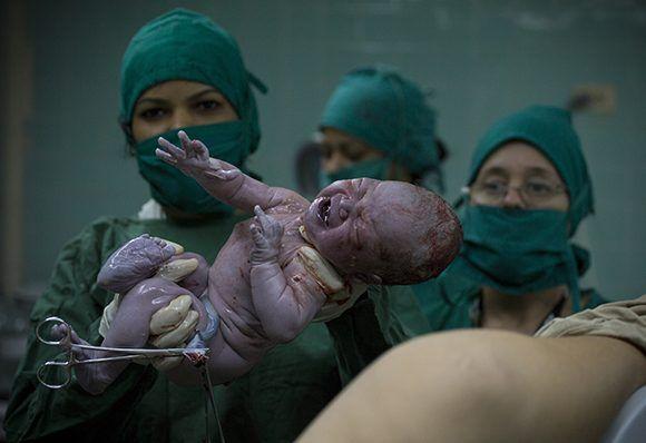 La media anual de nacimientos en Pinar del Río asciende a 5000 niños. Foto: Irene Pérez/ Cubadebate.