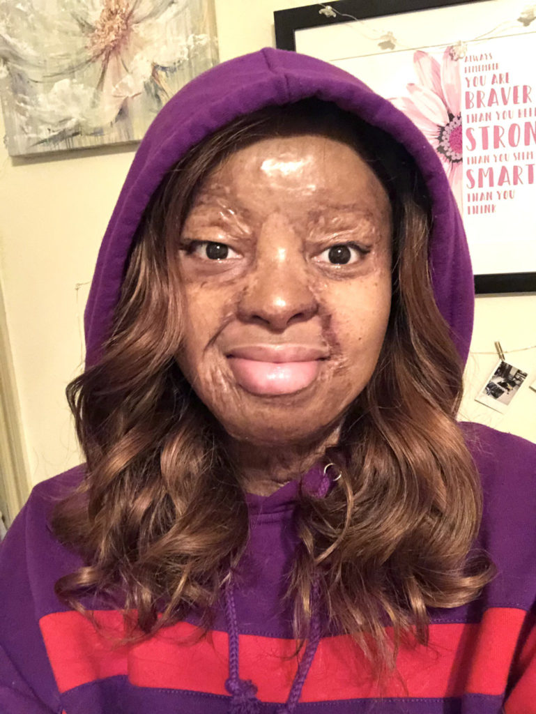 """""""If You Are Not Dead, God Is Not Done With You"""" – Plane Crash Survivor Kechi Okwuchi Says As She Shares Photo From 14 Years Ago"""