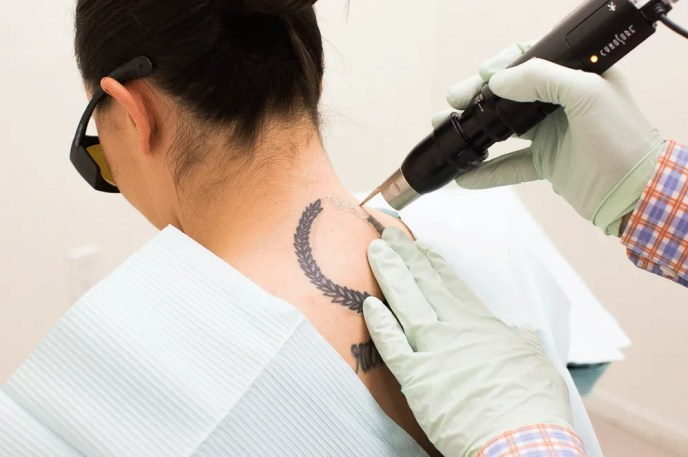 Tattoo Removal: Here's What No One Tells You About the ...