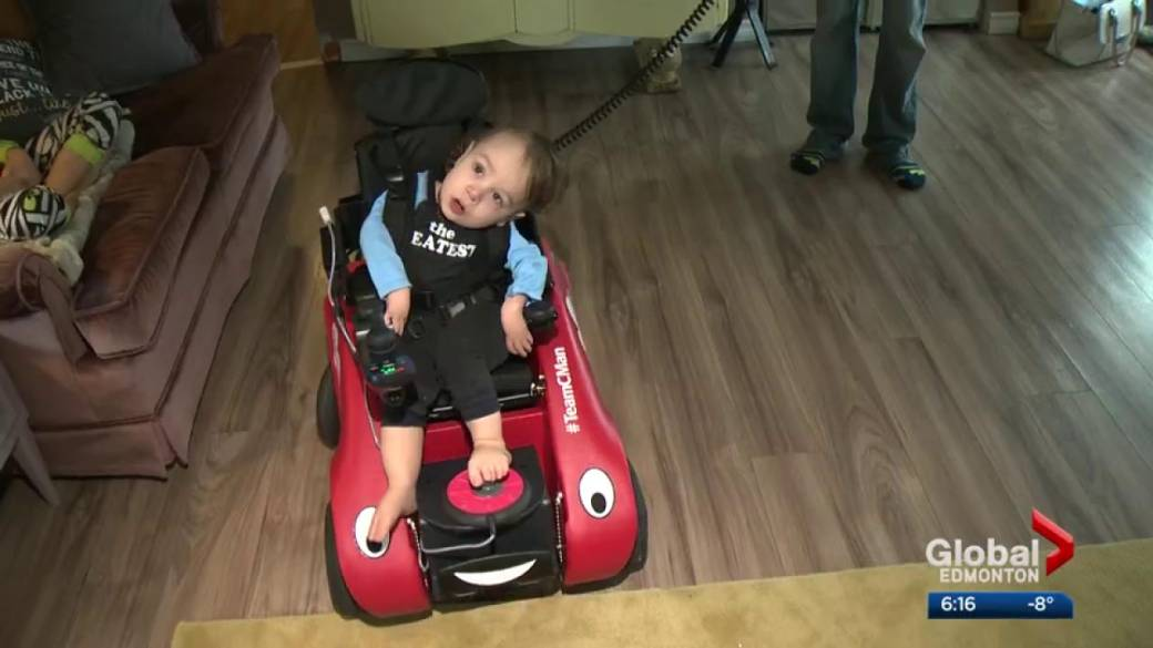 Click to play video: 'Alberta boy born in the shape of a 'C' receives custom wheelchair'