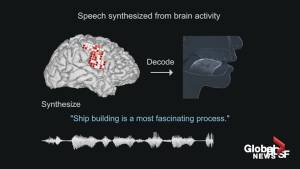 Scientists turn brain signals into synthesized speech