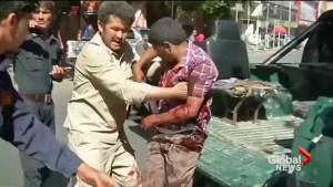 Victims of massive Afghanistan bombing rushed to Kabul hospitals