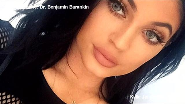 Doctors Warn Teens Of Dangers From Trying Kylie Jenner Lip