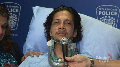 Victim of last month's hit-and-run in Brampton pleads for driver to turn themselves in