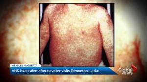 AHS issues public alert after traveller with measles visits Leduc while contagious