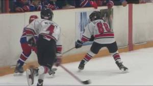 Teen players back on the ice too soon after a concussion: study