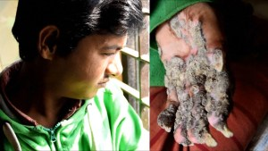 A year after being 'cured', Bangladesh's 'Tree Man' once again shows signs of rare skin condition