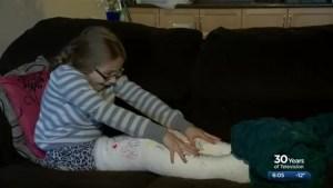 Saskatoon girl suffers two broken legs after tobogganing crash at Diefenbaker Park