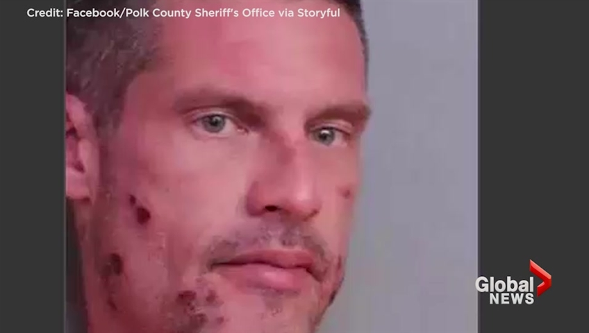 Fla. Man Calls 911 to Report a Drunk Driver -- Himself