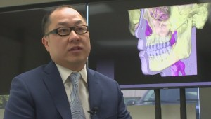 Several treatment options for those suffering from obstructive sleep apnea