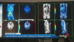 Prostate cancer testing can save lives: study