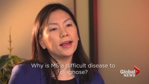 Brain interrupted: Why MS is difficult to diagnose