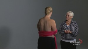 Calgary event allows women with breast cancer to see post-surgical results