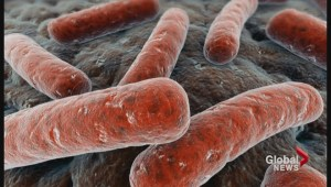 Sepsis breakthrough made by UBC researchers