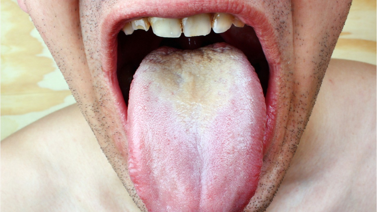 Woman on antibiotics develops a 'black hairy tongue' in freakish medical case