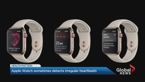 Health Matters: New study suggests Apple Watch can detect irregular heartbeat