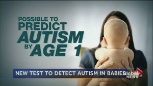 Possible major breakthrough in the early detection of autism