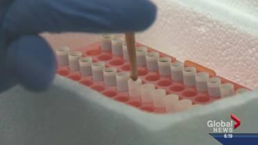 Are fecal transplants the future of medicine? | Globalnews ca