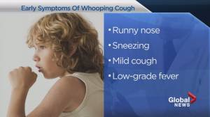 Travelling to southern Alberta this week? Beware of whooping cough