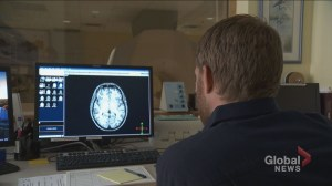 N.B. doctors push for education in the advancements of concussion treatments