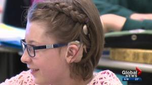 Special tech helps Alberta kids with hearing loss in schools