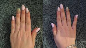 Is 'smartphone pinky' real and is it ruining your hands?