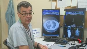 Kelowna doctors proving telemedicine can slash patient travel time