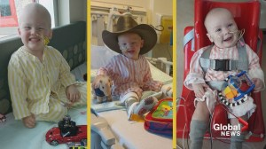 Community donations fund improved pediatric procedures at Alberta Children's Hospital