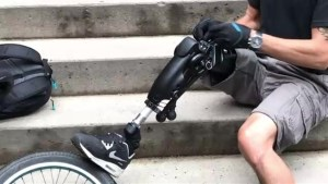 New prosthetic leg, a first of its kind