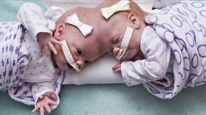10-month-old twins joined by the head successfully separated
