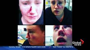 Warning about online dating after brutal attack on a Vancouver Island woman