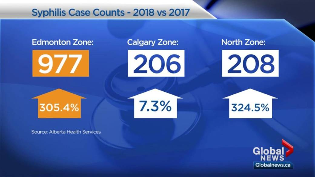 Alberta syphillis rate 11 times higher than in 2014: Alberta Health Services